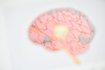 Brain,Wave,On,Electroencephalogram,Eeg,For,Epilepsy